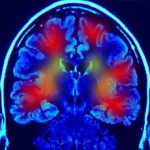 New studies may help improve motor control for Parkinson&#039;s disease patients